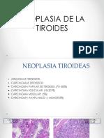 Trastornos neoplásicos de tiroides, paratiroides, pancreas y medula suprarenalhipófisis, páncreas, .pdf
