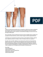 Power Strips for Varicose Veins