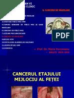 8 CANCERE MAXILARE.ppt