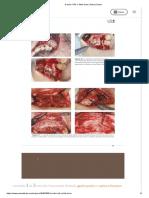 E book l PRF e Stick bone _ Passei Direto8.pdf