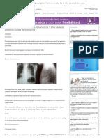 Fisiopato caso clinico.pdf