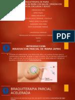 BRAQUITERAPIA DE MAMA presentacion final.pptx