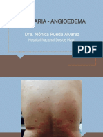 7._Urticaria_-_Angioedema