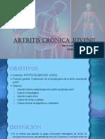 ARTRITIS CRÓNICA JUVENIL-MARCO MOLINA.pdf