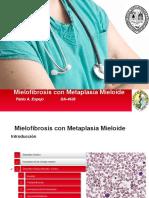 Mielofibrosis Con Metaplasia Mieloide