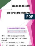 electrocardiogramaanormal-1