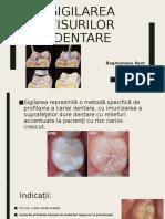 Sigilarea fisurilor dentare