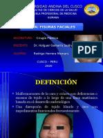 FISURAS FACIALES.ppt