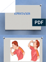 Epistaxis.pptx