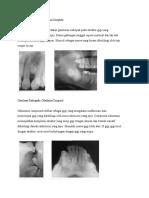 Gambaran Radiografis  Odontoma Compleks&compound