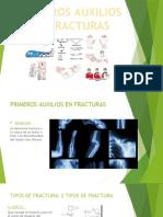 Diapositivas de fracturas