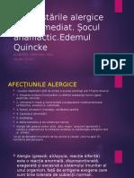 socul anafilactic , edemul quinke