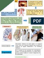 clinica y dx de sindrome de leriche