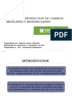 TRACCION Y RETRACCION DE CANINOS MAXILARES Y MANDIBULARES