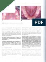 Ortodoncia en Dentición Mixta - Esgrivan_unlocked2 - 0550