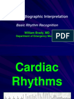 Introduction-to-ECG-Rhythms