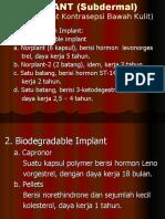 Implant.ppt