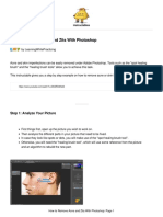 How-to-Remove-Acne-and-Zits-With-Photoshop