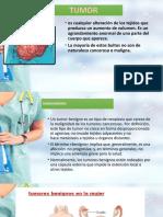 tumores-benignos-grupo-4-final..pptx