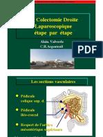 Colectomie-D-AV