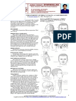 ACUPUNCTURE TREATMENT OF BELL_S PALSY