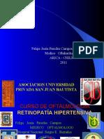 retino hipereten