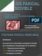 protesisparcialremovible-150615192316-lva1-app6891