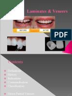 laminates and veneer endodontics.