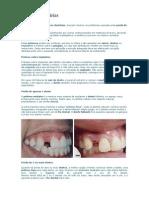 proteses_dentarias