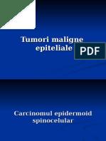 Prezentare tumori maligne