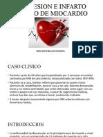 DEPRESION E INFARTO AGUDO DE MIOCARDIO.pptx