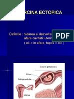 curs BD ectopica