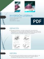 inversinuterina-150816191050-lva1-app6892