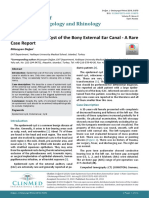 journal-Giant epidermoid cyist of the bony external ear canal - A Rare case report