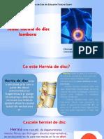 Hernie de disc.pptx