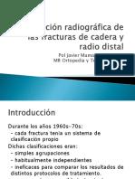 01.- CLASIFICACION RADIOGRAFICA DE LAS FRACTURAS DE CADERA