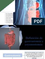 CONOCIENDO AL PACIENTE CON OSTOMIA DIGESTIVA.pptx