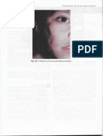Lupus Profundo.pdf