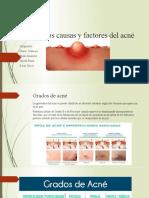 exposicion grados de acne