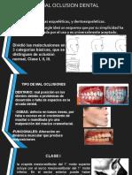 manual de mal oclusiones dentales 33