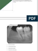 Endodontic Mcqs - DocShare.tips 2