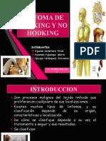 LINFOMA DE HODKING Y NO HODKING gmf.pptx