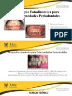 Terapia Fotodinámica para enfermedades Periodontales (1)