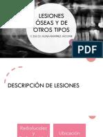 LESIONES ÓSEAS Y DE OTROS TIPOS