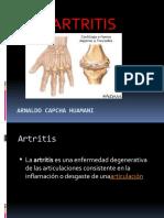 2.- ARTRITIS.pptx