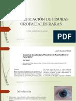 CLASIFICCION  DE FISURAS OROFACIALES RARAS