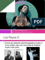 presentación de rx tórax