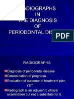 Radio Graphic Aids - Diagnosis Periodontal Diseases Kalps Ppt
