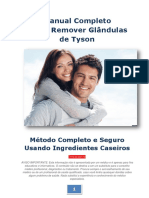 INDICE_Manual_Completo_Remover_GT
