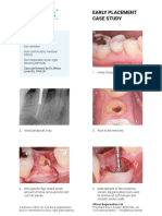 29-Early-Implant-Placement-Protocol-Case-Study